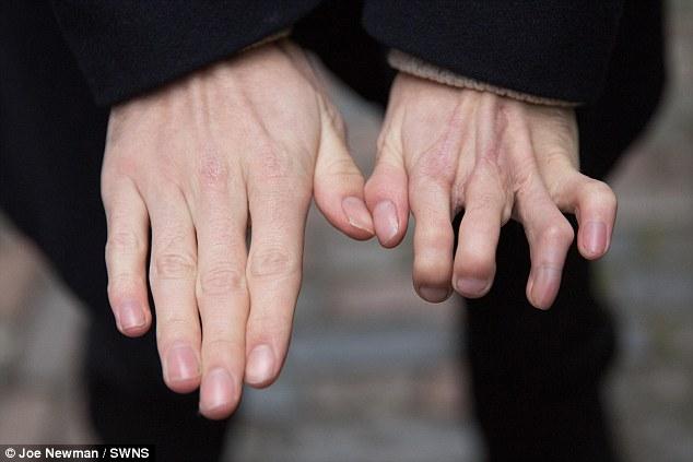dedos-dos-pes-implantados-na-mao_01