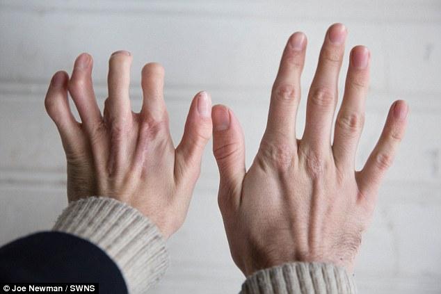 dedos-dos-pes-implantados-na-mao_02