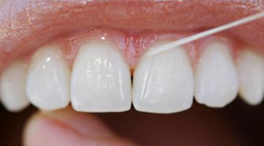 94205ed43 Usar fio dental de maneira errada pode prejudicar a saúde bucal ...