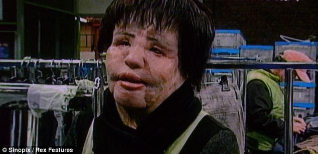 Apesar de 10 operações, Asa Mioku não conseguiu recuperar sua estética anterior e hoje trabalha em uma loja de reciclagem.