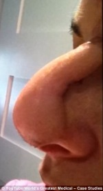 cancer-no-nariz-apos-pomada-fitoterapica-Cansema_01