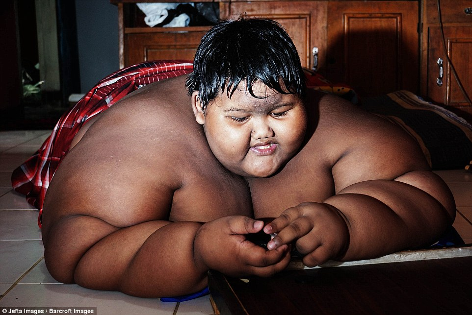 menino-mais-gordo-do-mundo_04