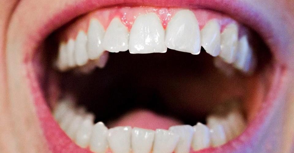 c79c995f8 TOP 5 maneiras naturais de deixar seus dentes mais brancos e saudáveis