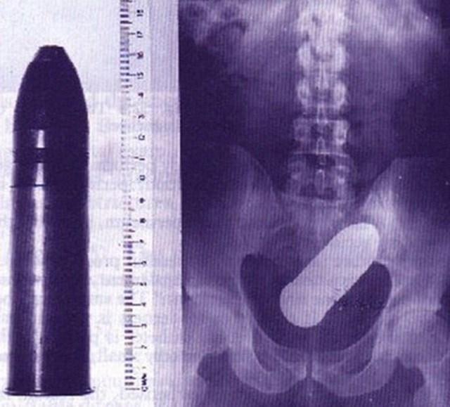 13-objetos-totalmente-surreais-encontrados-em-raios-X-que-você-jamais-irá-acreditar-12