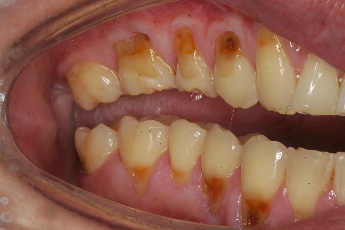 dentes_01