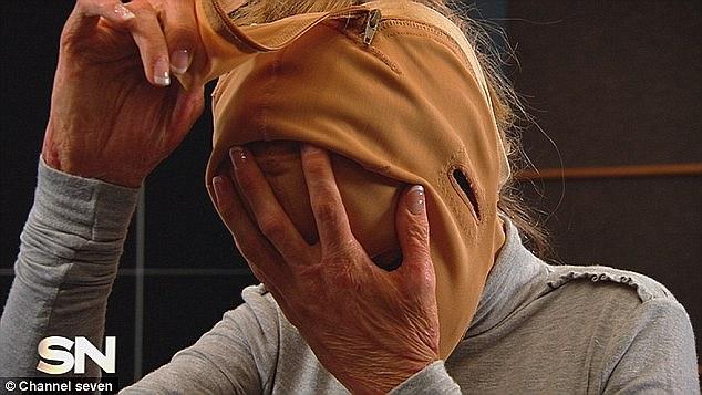 mulher-com-rosto-queimado-6