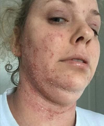 mulher-eczema_01