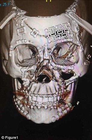 tomografias-cranio-esmagado_2