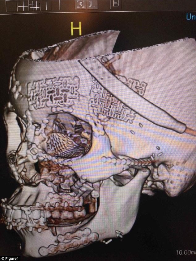 tomografias-cranio-esmagado_3