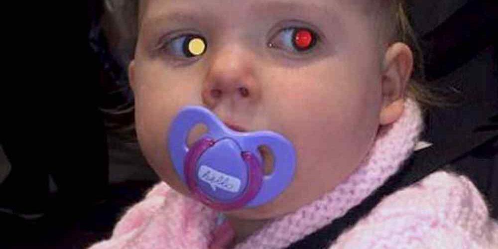 """87da05717 Retinoblastoma: tirou foto do seu filho e notou este """"brilho"""" estranho nos  olhos? Cuidado! Pode ser câncer ocular"""