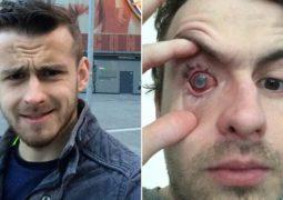 homem fica cego após tomar banho usando lentes de contato